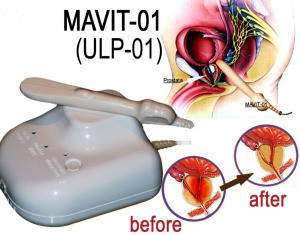 MAVIT (ULP-01) AND BENIGN PROSTATIC HYPERPLASIA BPH – PEMF devices in USA