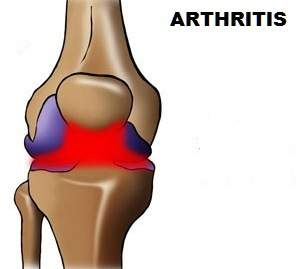 ARTHRITIS AND OSTEOARTHROSIS: HOW TO RELIEVE PAIN