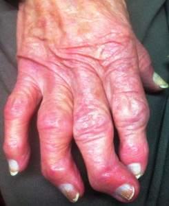 MAGOFON AND DEFORMING OSTEOARTHRITIS
