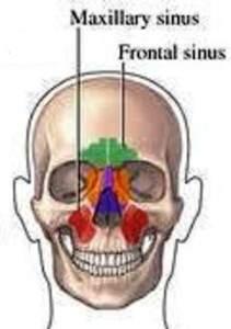 Chronic sinusitis and FEYA UTL-01