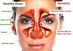Chronic sinusitis and FEYA UTL-01 – alternative therapies