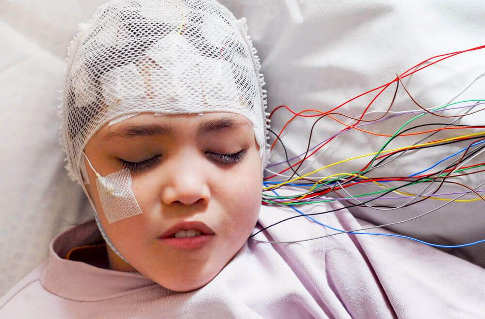 Epilepsy treatment
