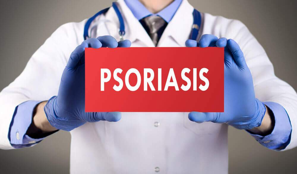 What helps psoriasis