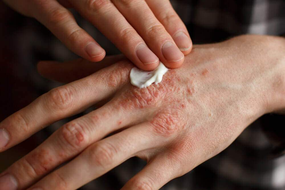 How to treat psoriasis at home