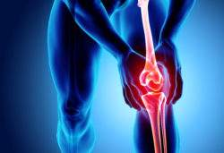 Inflamed knee joint