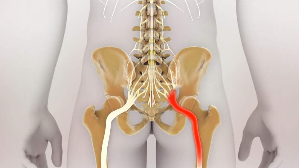 Illustration of the irritated sciatic nerve